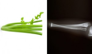 celery-bone-healing